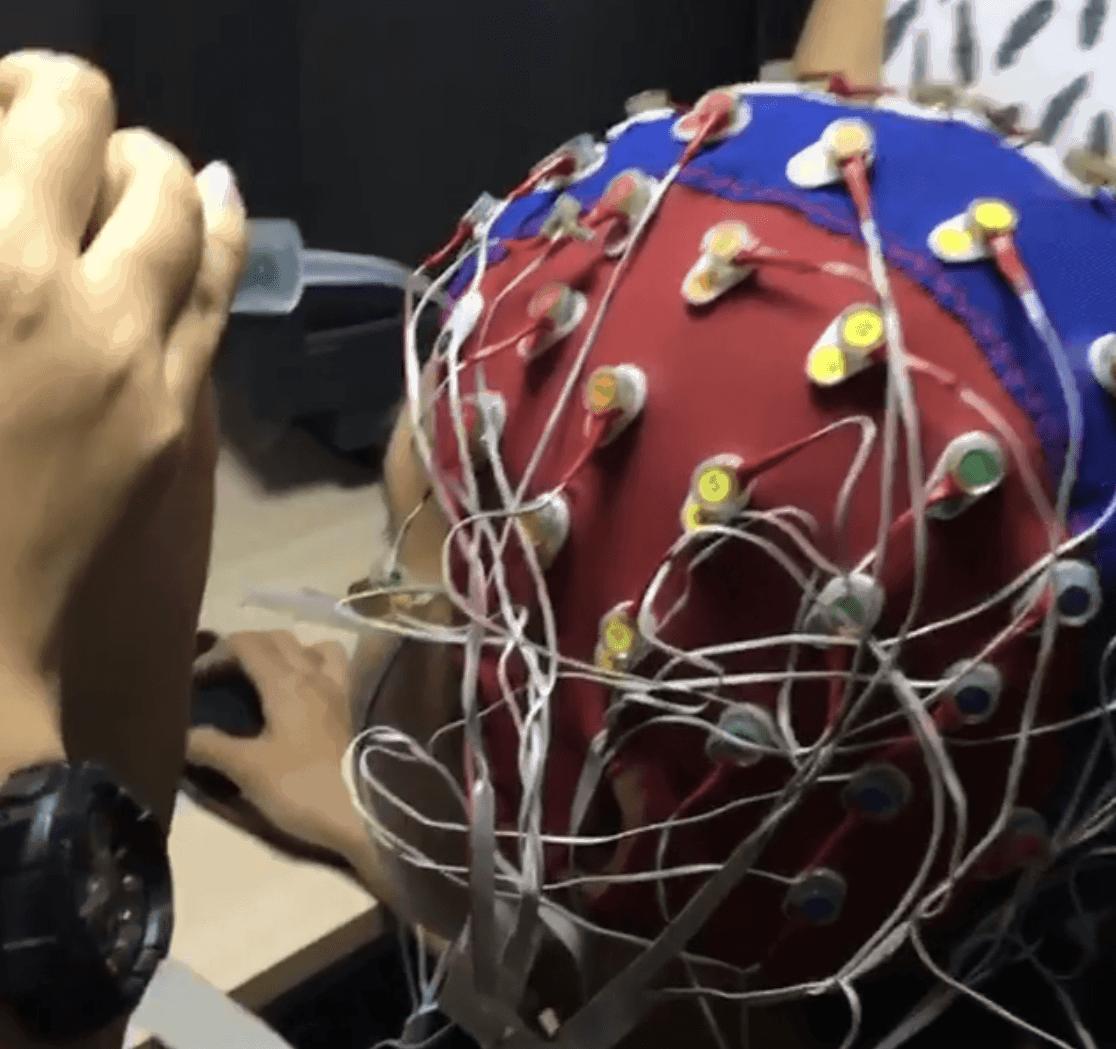 EEG cap!